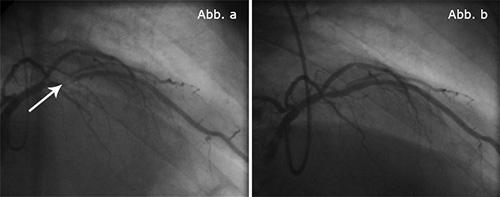 Abb. a: Blutgefäße vor dem Einsetzen eines Stents. Abb. b: Blutgefäße nach dem Einsetzen eines Stents